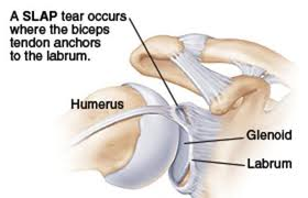 labrum tear shoulder