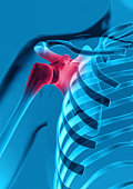 Shoulder with Joint Inflamation