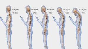 Image of Smartphone Posture